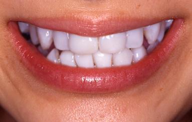 差し歯の白い部分(表面)が剥がれてしまいました …