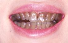 差し歯、銀歯を白くできる!歯のマニキュアとは |  …