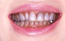 保険で前歯を差し歯に!歯医者に行く前に知ってお …