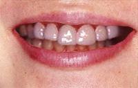 差し歯のホワイトニングで ... - whitening-me.com