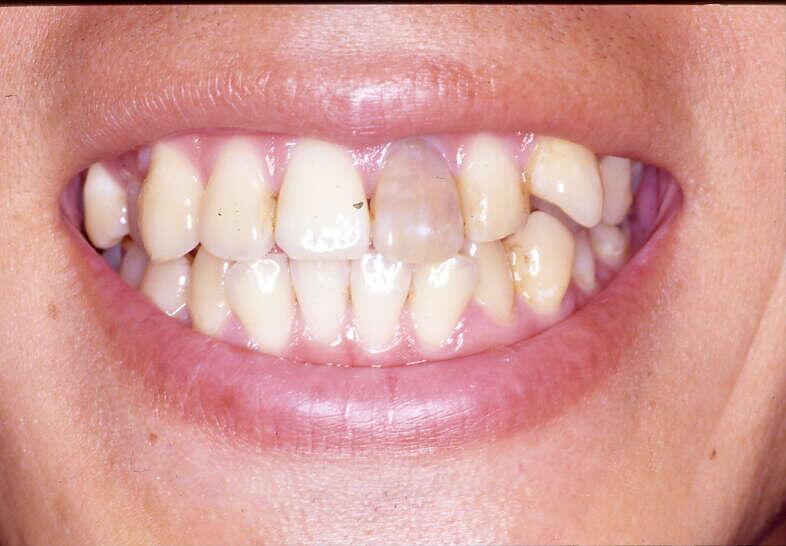 歯を白く塗るマニキュアの ... - suteki-story.com