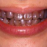 あきらめないで!抗生物質(テトラサイクリン)で変色した歯を白くする方法教えます1