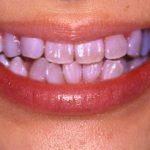 あきらめないで!抗生物質(テトラサイクリン)で変色した歯を白くする方法教えます