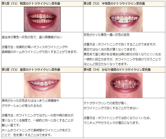 テトラサイクリン歯の表