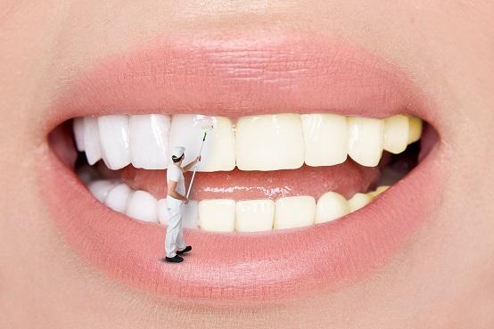 歯のマニキュアとは