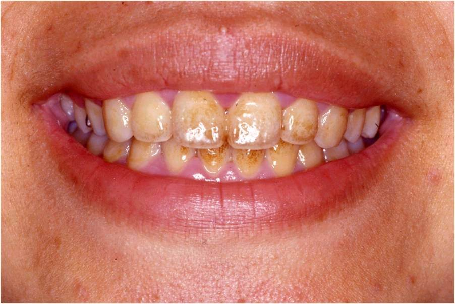 歯の表面の着色の除去