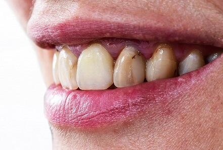 虫歯や虫歯の治療後の隙間